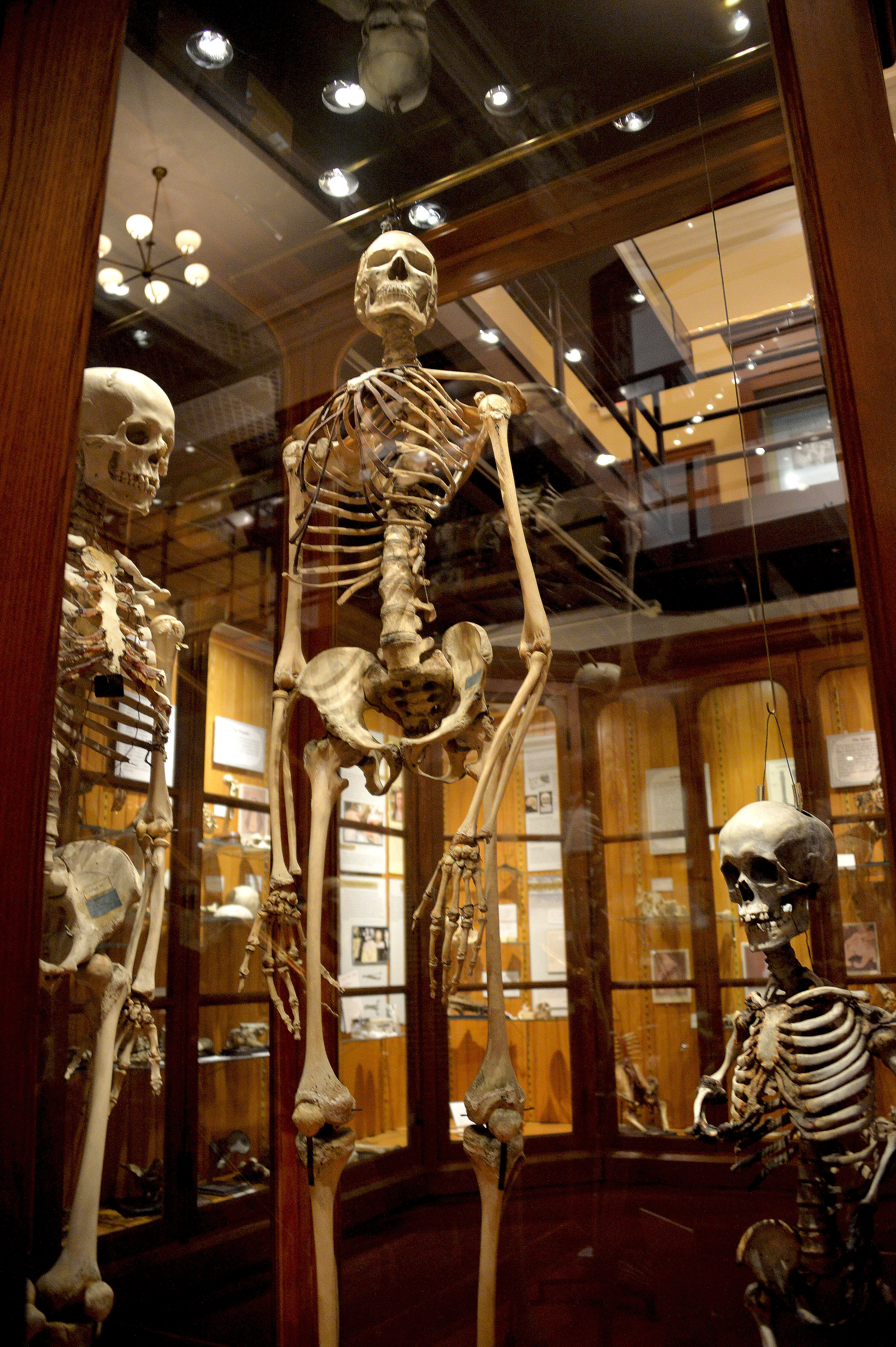mutter museum The mütter museum america's finest museum of medical history, the mütter museum displays its beautifully preserved collections of anatomical specimens, models.