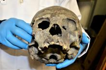 View of a human skull from the pre-Columbian Tiahuanaco culture at Bolivia's National Museum of Archaeology, in La Paz, Bolivia, April 8, 2018. EPA-EFE/BOLIVIAN CULTURES AND TOURISM MINISTRY