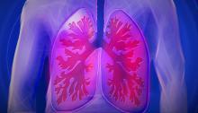 Cada año, el cáncer de pulmón afecta a más de234 mil personas en EEUU. Foto:CC0 Creative Commons