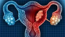"""Este cáncer es una de las llamadas """"enfermedades silenciosas"""". Durante sus primeros estadíos, la enfermedad avanza silenciosamente sin que la mujer sea consciente de ello."""